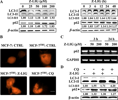 Z-LIG functions as autophagy inhibitor in MCF-7TR5 cells.
