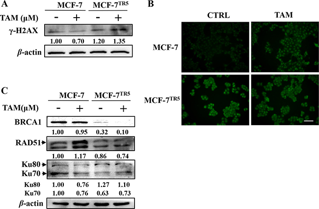 Higher DNA damage level and impaired DSB repair mechanisms were observed in MCF-7TR5 cells.