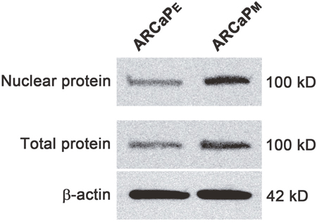 Western blot of MCM3 in ARCaPE and ARCaPM cells.
