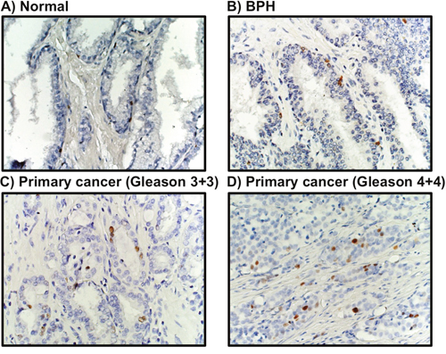 MCM3 expression in human prostate cancer.