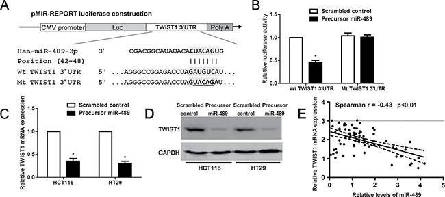 miR-489 regulates TWIST1 abundance in CRC cells.