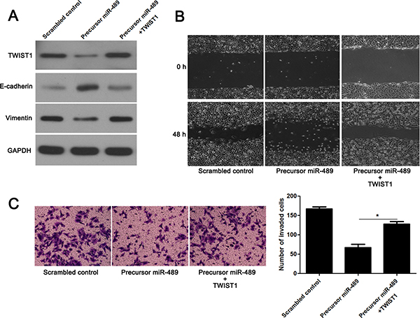 TWIST1 restoration abolishes the effects of miR-489 in CRC cells.