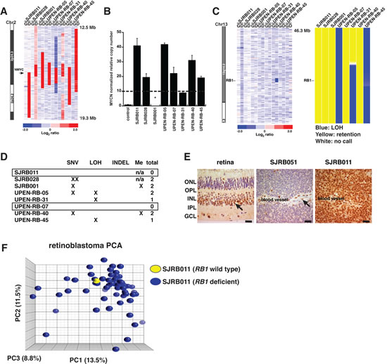 RB1 Gene Analysis in Retinoblastomas with MYCN Amplification.