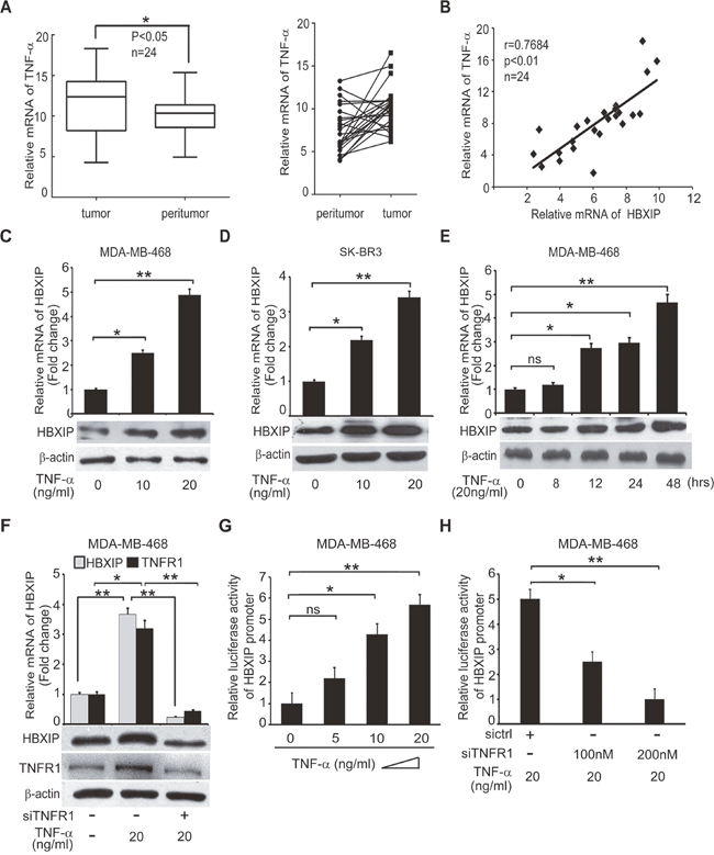 TNF-α is positively correlated with HBXIP in clinical breast cancer tissues and up-regulates HBXIP in breast cancer cells.