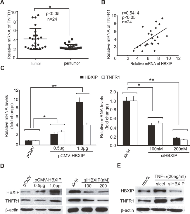 TNF-α-elevated HBXIP up-regulates the expression of TNFR1 in breast cancer cells.