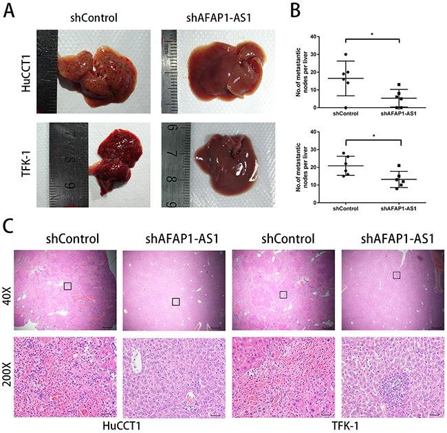AFAP1-AS1 knockdown inhibits CCA metastasis in nude mice.