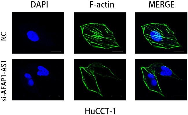 AFAP1-AS1 knockdown induced loss of stress filament integrity in CCA cell lines.