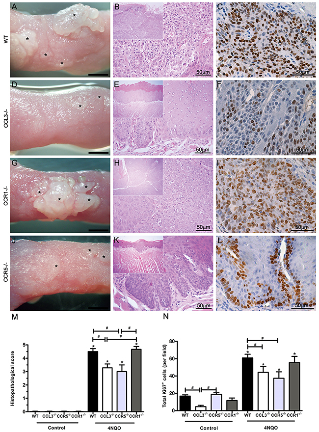 Clinical and microscopic findings of the SCC-induced lesions in WT, CCL3-/-, CCR1-/- and CCR5-/- mice after 4NQO treatment.