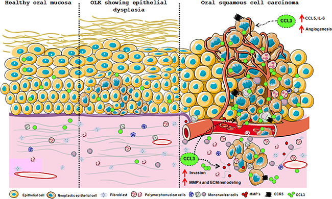 Schematic presentation of the CCL3/CCR5 axis involvement in oral carcinogenesis.