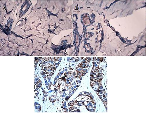 Different expression of CXCR1 in normal breast tissue, breast fibroadenoma and breast carcinoma tissue (IHC, ×400).