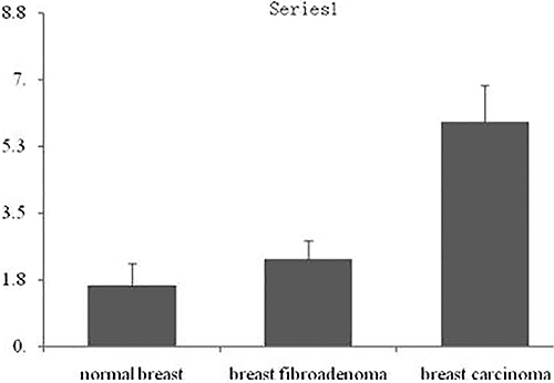 Integral analysis of CXCR1 expression in breast cancer tissues.