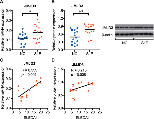 Enhanced JMJD3 mRNA and protein expression in SLE CD4+ T cells.