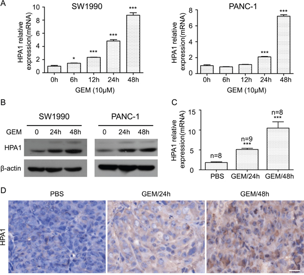 Gemcitabine induces the expression of HPA1 in PC cells in vitro and in vivo.