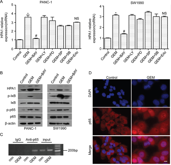 The involvement of NF-κB signaling in gemcitabine-induced HPA1 expression.