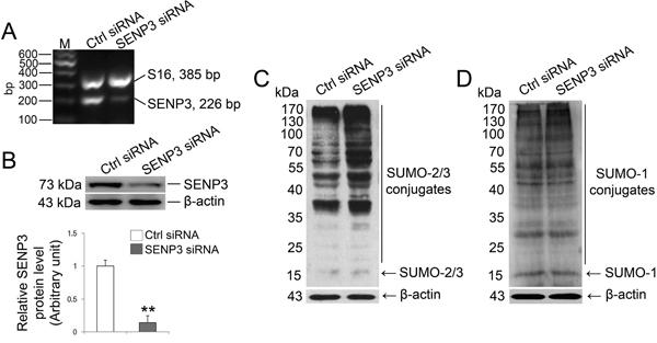 SENP3 depletion intervene SUMO-2/3-ylation profile in Sertoli cells.