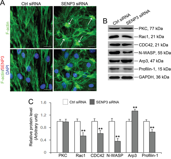 SENP3 knockdown disrupts actin microfilaments reorganization in Sertoli cells by dysfunction of Arp3 and Profilin-1.