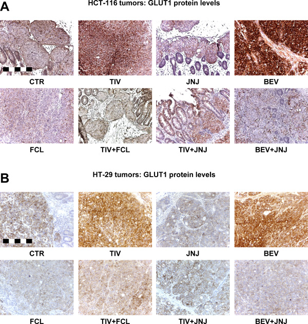 Resistance to angiogenesis inhibitors in human HGF knock-in SCID mice is associated with HGF-dependent GLUT1 overexpression.