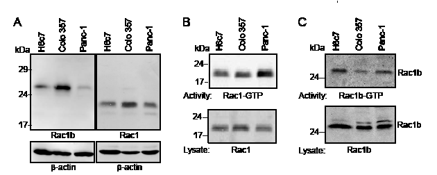 Rac1b is expressed in an active GTP-bound form in pancreatic ductal epithelial cells.