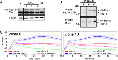 Effect of stable overexpression of Rac1b in Panc-1 cells on TGF-β1-mediated cell motility.