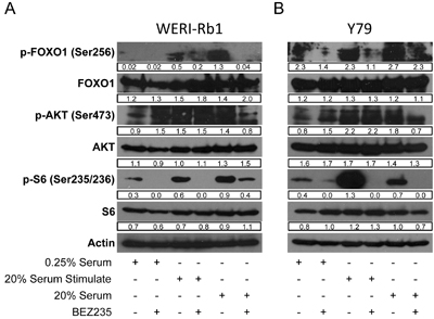 BEZ235 inhibits phosphorylation of AKT targets in human retinoblastoma cell lines.