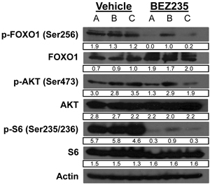 BEZ235 treatment suppresses FOXO1 and S6 phosphorylation in murine retinoblastoma.