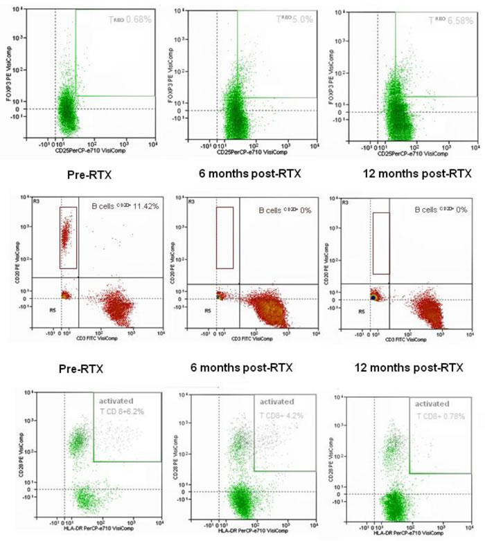 Representative dot-plots of Treg(CD4+CD25+FOXP3+, top plots), B cell (CD 20+, central plots) and activated T CD8+ cell (CD 20+, lower plots) as evaluated by flow cytometry.