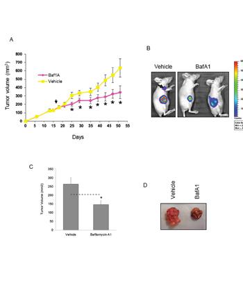 Bafilomycin 1A reduces the growth of both MCF7 and MDA-MB-231–luc xenograft tumors.