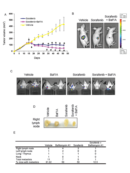 Tumor growth and metastasis are reduced by bafilomycin 1A combined with ERK inhibition.