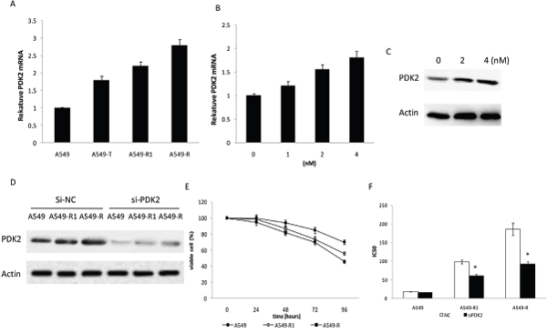 Increased PDK2 expression in paclitaxel-resistant cells.