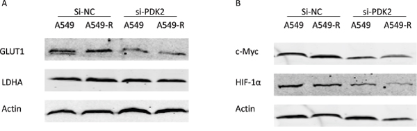 Protein expression changes post-transfection with PDK2-siRNA.