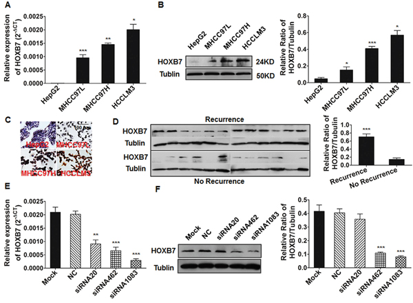 The expression of HOXB7 in HCC cell lines and tumor tissues.