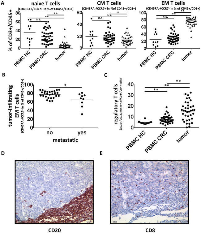 Tumor infiltrating T cells in colorectal cancer.