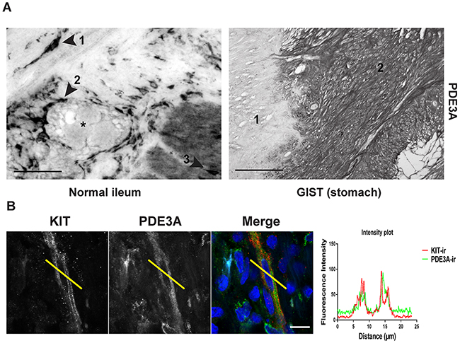 PDE3A is expressed in human ICC and GIST.