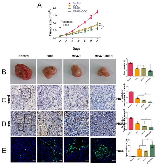 AXL inhibition restores docetaxel sensitivity in DU145-DR xenograft tumors.