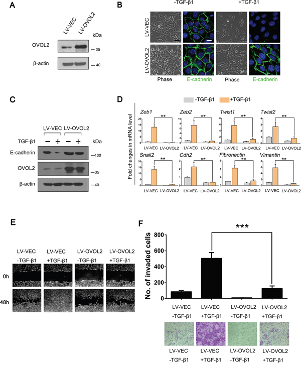 OVOL2 inhibits TGF-β-induced EMT during mammary tumor metastasis.