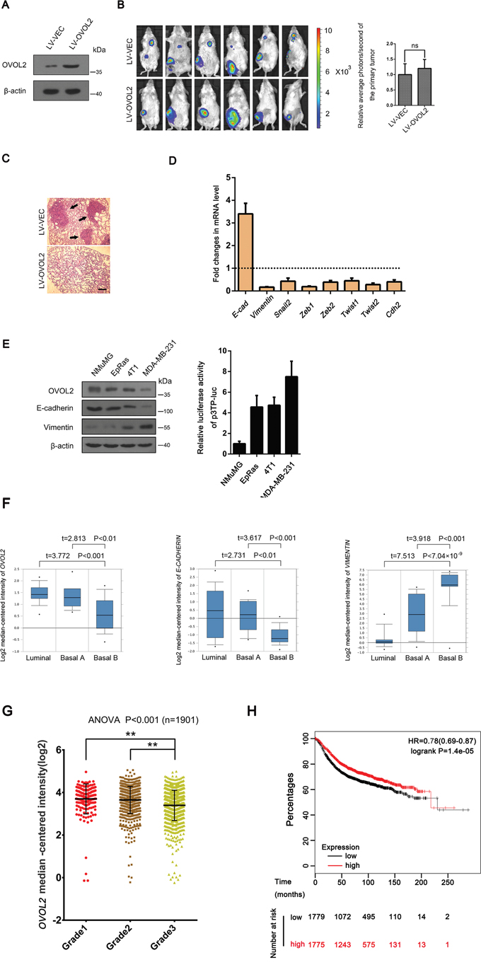 OVOL2 is a candidate EMT suppressor during mammary tumor metastasis.
