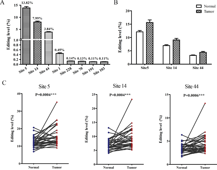 The hyper-edited BLCAP is associated with cervical carcinogenesis.