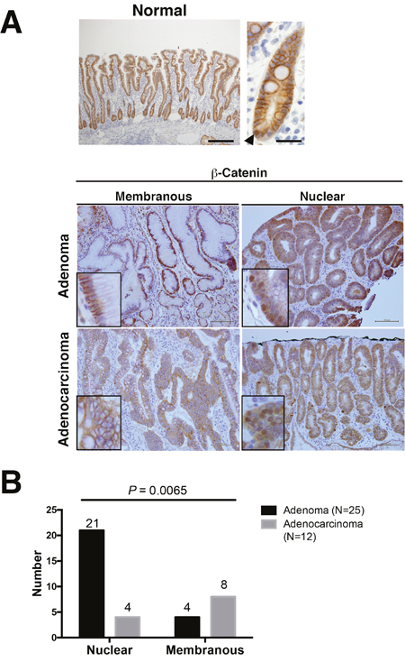 β-Catenin expression in adenoma and adenocarcinoma of the non-ampullary duodenum.
