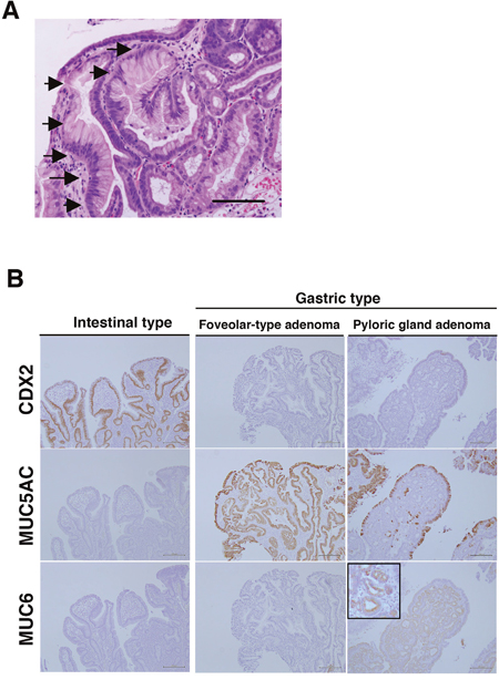 Gastric duodenal metaplasia (GDM) and histological types of duodenal adenomas in non-ampullary lesions.