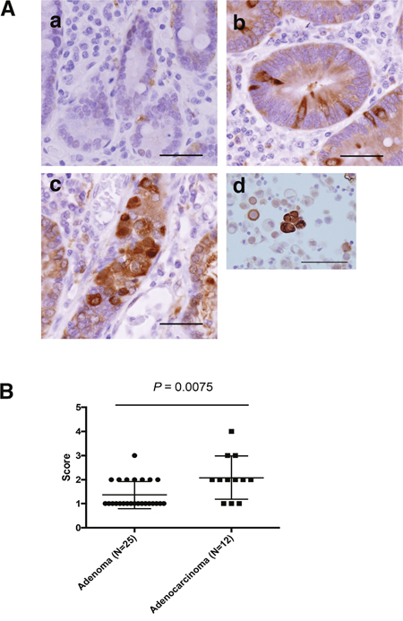 ALDH1 expression as assessed by IHC in non-ampullary duodenal adenomas and adenocarcinomas.