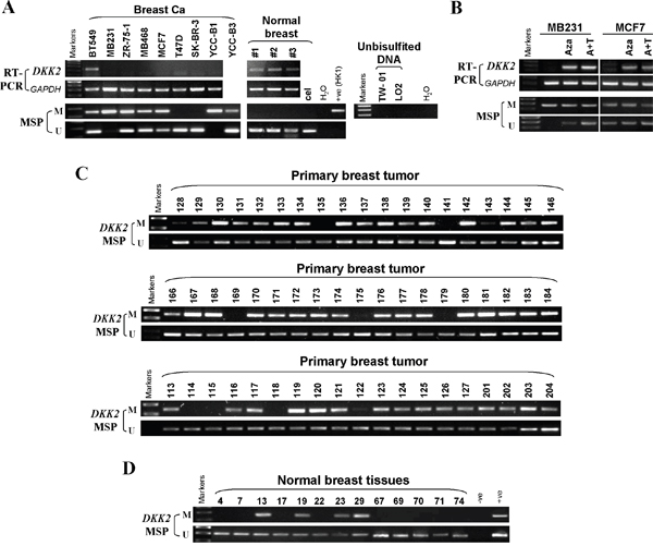 The methylation status of DKK2 promoter in mammary carcinoma cell lines, primary tumor tissues and normal breast tissues.