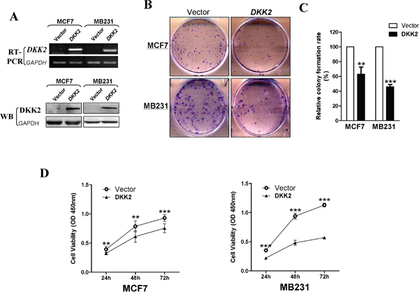 Inhibitory effect of DKK2 in breast carcinoma.