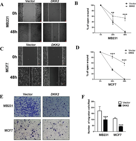 Ectopic expression of DKK2 inhibited migration of breast cancer cells.