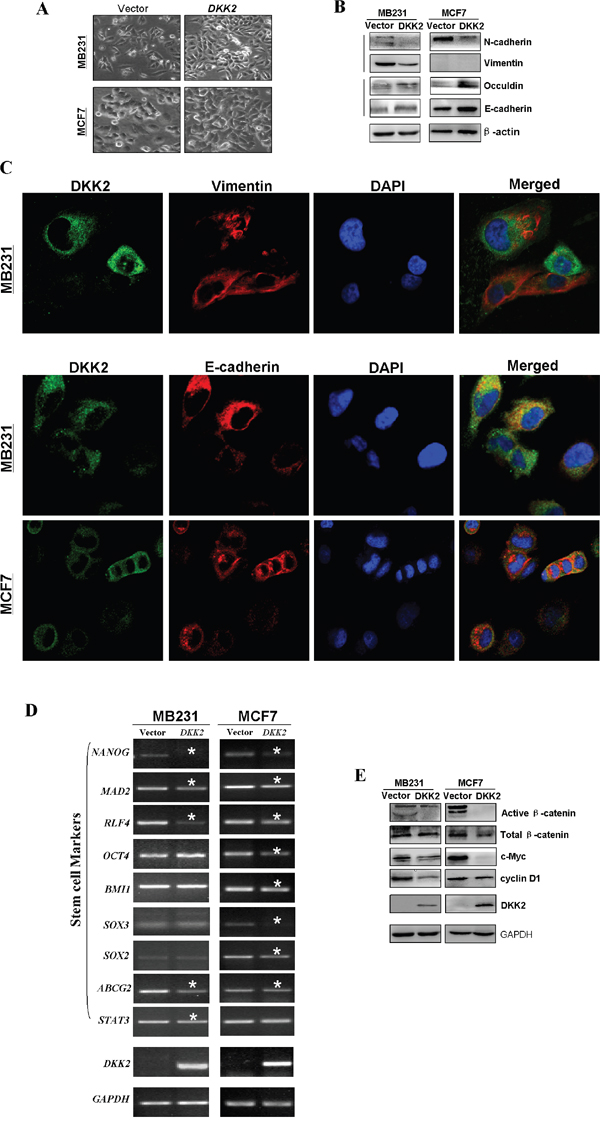 Ectopic expression of DKK2 and the effects on EMT and Wnt signaling in breast tumor cells.