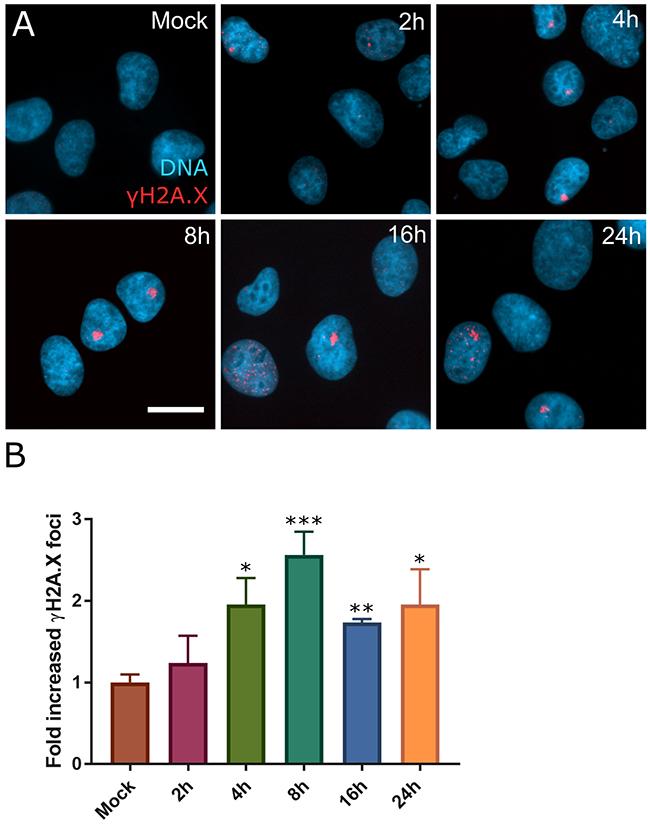 DNA damage foci form rapidly after SINE treatment.