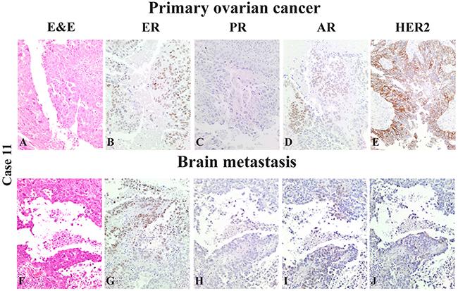 "Case 11 of the ""Case dataset"": representative case of a serous high-grade ovarian cancer (A-E) (A: H&E, 10x): hormonal receptor status (B: ER=60%, 10x; C: PR=0%, 10x; D: AR=8%, 10x) and HER2tumor expression (E: HER2 3+, 10x)."