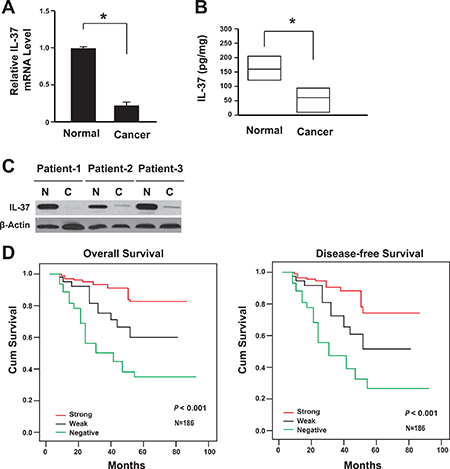 Lack of IL-37 expression correlated with the poor prognosis of colon cancer.