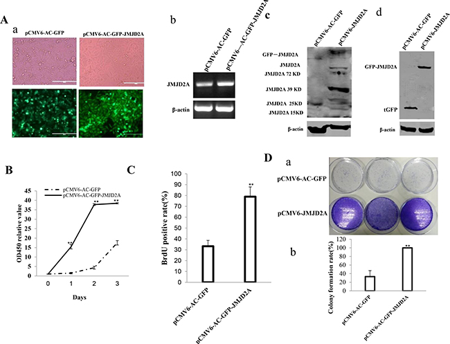 JMJD2A accelerates liver cancer cell growth in vitro.
