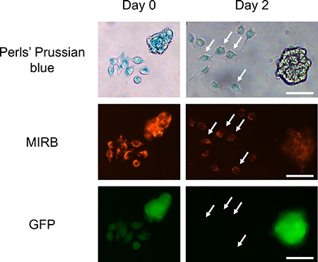 SPIO-free J774 macrophages take up iron oxides released by MIRB-labeled 4T1-GFP cells.