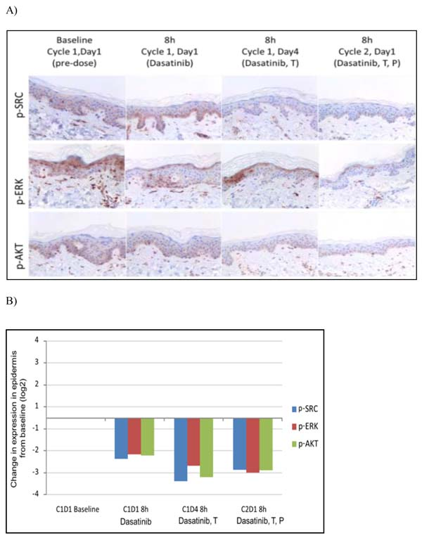 Immunohistochemical expression analysis of p-SRC, pAKT, p-ERK protein in sequential skin samples after treatment with dasatinib, the combination of dasatinib and trastuzumab (T) and in addition to paclitaxel (P).